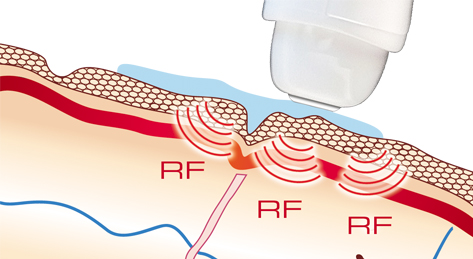 Ilift Radiofrequency - Trattamento